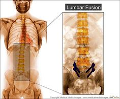 Color X-Ray Medical Image of a Lumbar Fusion Surgery from the front (anterior). Ideal for Medical Websites and Publications. http://www.medicalmediaimages.com/color-x-ray-lumbar-fusion--spine-anatomy/783