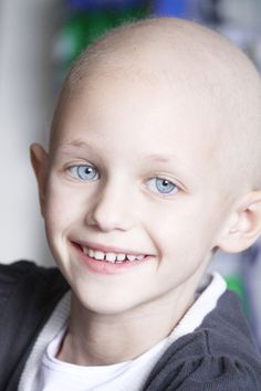Smiling child with cancer. A caucasian girl with hair loss due to cancer smiling , Precious Children, Beautiful Children, Smile Face, Make You Smile, Caucasian Girl, Chubby Babies, Different Emotions, We Are The World, Beauty
