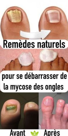 Beauty Discover Effective Natural Remedies To Get Rid Of Nail Fungus Infection Fongique Toe Fungus Social Well Being Teeth Care Fungus Treatment Fungi Health Remedies Nail Care Natural Remedies Nail Health Signs, Foods For Brain Health, Toe Fungus, Social Well Being, Teeth Care, Fungi, Health Remedies, Nail Care, Beauty Tutorials