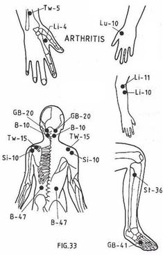 Acupressure Points Headaches,and other helpful tips. LI 4