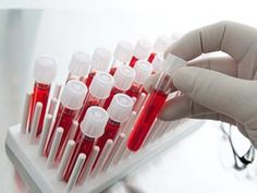 When #bloodthinning medications are used regularly, a blood #coagulation test is needed at periodic intervals in order to determine the consistency of blood.