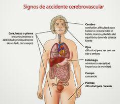 SAIKU: ACCIDENTE CEREBRO - VASCULAR (A.C.V.)