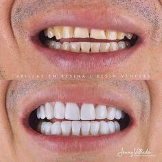 Diseño de sonrisa en resina con micro partículas de porcelana en color blanco sutil Dental, Smile Design, Color, Resin, Porcelain Ceramics, White People, Artists, Colour, Teeth