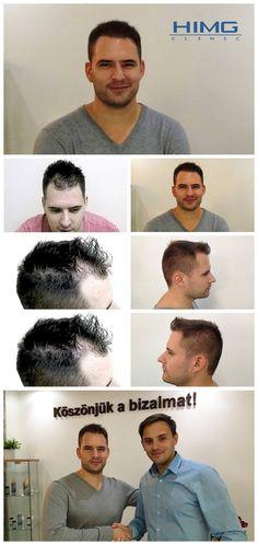 Hajbeültetési eredmények hajátültetés előtt és után készült képekkel - Hajátültetés PROFUE Clinic Fue Hair Transplant, Before After Photo, Clinique, Budapest, Photo And Video, Women, Europe, Hair Loss, Bald Hair