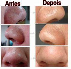 cravos? Cravos são impurezas que se acumulam nos poros abertos e obstruem a respiração da pele! Eles acometem mais as peles oleosas e geralmente veem aco