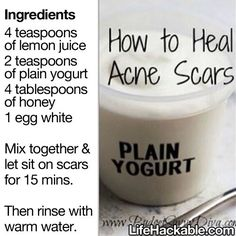 How to heal acne scars with lemon juice plain yogurt honey and egg