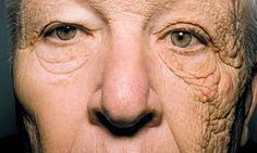 Truck driver William McElligott's face is a graphic illustration of the damaging effects of the sun