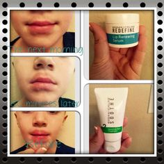 Do you know anyone who has the bad habit of licking their lips and causing red irritation around their mouth? Rodan + Fields Soothe Sensitive Skin Treatment and Redefine and Lip Renewing Serum has helped this boy! Rodan And Fields Soothe, Rodan Fields Skin Care, My Rodan And Fields, Rodan And Fields Business, Dry Lips Remedy, Cure For Chapped Lips, Skin Treatments, Anti Aging Skin Care, Sensitive Skin
