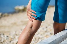Looking for Varicose Vein Treatment in El Paso If you have varicose veins or…