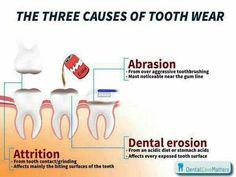 Mòn răng và các nguyên nhân