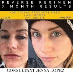 Here is the perfect example of why I REVERSE!!  Meet Jenna...a fellow RF consultant. In her before photo her pregnancy melasma shines through her make-up. Now check out her beautiful glowing skin...MAKE-UP FREE in her after picture!! No smoke and mirrors-just real RESULTS!!!!