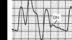 Timing and triggering of the Intra-aortic Balloon Pump (IABP) Cardiac Cycle, Balloon Pump, Intensive Care Unit, Cardiology, Nurse Life, Nursing, Anatomy, Balloons, Knowledge
