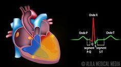 La révolution cardiaque en 3D temps réél : mode d'emploi - YouTube