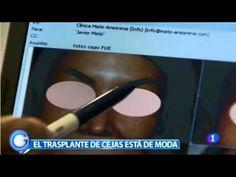Clínicas Mato Ansorena - Implante de Cejas