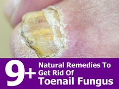 """9 Natural Remedies To Get Rid Of Toenail Fungus… – """".Designed To Deal With Even The Nastiest Toe & Nail Fungus"""" Fingernail Fungus, Toe Fungus, Toenail Fungus Remedies, Toenail Fungus Treatment, Health Remedies, Home Remedies, Natural Remedies, Health And Beauty Tips, Health Tips"""