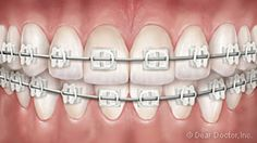 Adolescent Orthodontics Treatment Straightens New Permanent Teeth. We Offer Multiple Treatment Options Including Braces For Adolescents. Different Types Of Braces, Orthodontics, Adolescence