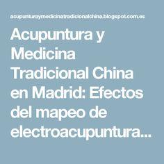 Acupuntura y Medicina Tradicional China en Madrid: Efectos del mapeo de electroacupuntura abre el camino para el tratamiento dolor de la fibromialgia