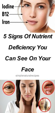 Vitamin deficienciesIs sometimes the main cause for many health issues, and can even cause death.Our body sends signals when it is not feeling well, and in this case our body feels imbalanced and…
