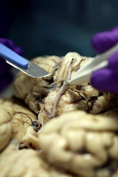 Observe the process, step by step, as professor Steve Gentleman dissects a brain at the Brain Bank. It may be difficult to look at, but the research done here helps scientists to learn more about little-understood and devastating conditions from Parkinson's disease to Alzheimer's and multiple sclerosis.