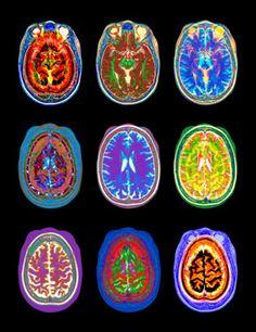 Pictured are nine different MRI scans from a woman's brain. MRI technology has been critical to understanding how the human mind works. Arte Sharpie, Illustration Inspiration, Illustration Art, Brain Art, Mri Brain, Plakat Design, Retro Futurism, Psychedelic Art, Grafik Design