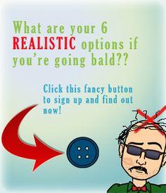 Hairloss BaldWin | Bald Baller Basement