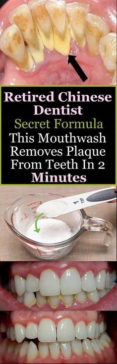 Retired Chinese Dentist Secret Formula This Mouthwash Removes Plaque From Teeth In 2 Minutes - Salud Bucal 2020 Homemade Mouthwash, Sexy Women, Receding Gums, Remover, Oral Health, Health Care, Dental Health, Teeth Health, Oral Hygiene