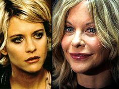 Meg Ryan. I think this could all be Botox and fillers, unless she had her eyes done. Whatever she had done I hope she stops or at least gets a new doctor. Not a good look. lt.