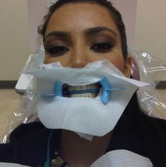 Até onde as pessoas são capazes de ir para aparecer… Kim Kardashian mostrou esta foto sua no dentista!!! Acho que ninguém merece isso… Ela já tem um reality show que mostra em detalhes a intimidade dela e da família dela sem poupar nenhum detalhe!!! Pelo jeito ninguém mais quer ter privacidade…