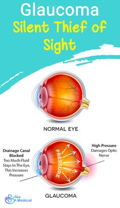 """Glaucoma is the leading cause of blindness in people older than It happens overtime without showing early symptoms; hence, it is nicknamed """"the silent thief of vision"""". Glaucoma Symptoms, Eye Anatomy, Top Hospitals, Best Doctors, Got Online, Eye Treatment, Doctor In, Medical, Shit Happens"""