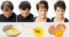 Mágikus házi recept hajhullás ellen és a gyorsabb hajnövekedésért. Csak 3 összetevő kell hozzá!