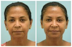This 54-year-old female is shown before and two weeks after Botox and fillers with Dr. Lam. If you need a consult with Dr. Lam, please contact us by 📞972-312-8188 🌎 www.lamfacialplastics.com 📩 info@lamfacialplastics.com 📍6101 Chapel Hill Boulevard, Suite 101, Plano, Texas 75093 🌐 Dr. Lam also offers virtual consultations #beforeandafter #botoxbeforeandafter #botoxinjections #botoxcosmetic #botoxfacial #botoxface #botoxfillers #undereyefillers #fillersinjection Facial Fillers, Botox Fillers, Botox Face, Under Eye Fillers, Botox Before And After, Botox Cosmetic, Botox Injections, Facial Rejuvenation, Surgery Center