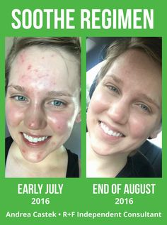 "Check out what this lovely lady has to say about her results:  ""I have struggled with acne my whole life - I tried everything prescribed by my dermatologist, and then decided to try Accutane. I was on Accutane during this time. Totally irritated and dried out my skin (and made me break out even more). My face literally hurt everyday. Soothe made my skin soo much calmer! It felt amazing. I was a skeptic at first but now I definitely believe in these products!!! <3"""