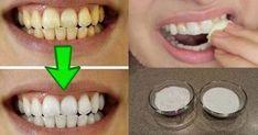 GUARANTEED! WHITEN YOUR YELLOW TEETH IN LESS THAN 2 MINUTES! – Yoo Tips