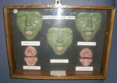 Wax dental model of teeth development 19th-20th c | Antique Dental Props