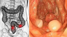 Researchers from the Penn Sate Hershey Cancer Institute believe they have found a potential cure for colon cancer. It turns out that the compound found in grapes, known as resveratrol, could be an effective treatment Colon Cancer Symptoms, Liver Cancer, Natural Cancer Cures, Natural Cures, Herbal Colon Cleanse, Salud Natural, Cancer Treatment, Stem Cells, Natural Treatments