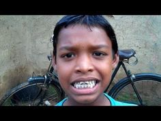 A film on Fluorosis in Orissa made by Video Volunteers Communication Design, Volunteers, India, Film, Movie, Movies, Film Stock, Film Movie, Film Books