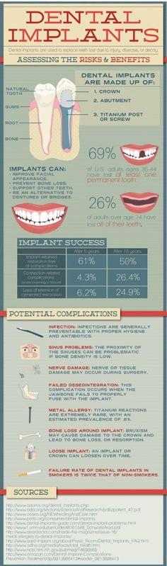 What do you do when you lose a permanent tooth? Bridges and dentures are commonly used to replace missing teeth. monitors your oral health after undergoing a significant experience like dental implant. Dental Facts, Dental Humor, Dental Hygienist, Dental World, Dental Life, Smile Dental, Dental Implants, Implant Dentistry, Dental Health