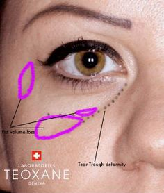 Diagram of tear trough deformity and how to get rid of dark under eye circles post. Facial Fillers, Botox Fillers, Dermal Fillers, Face Injections, Relleno Facial, Under Eye Fillers, Under Eye Primer, Tear Trough, Aesthetic Dermatology