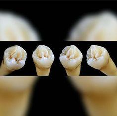 Teeth Implants, Happy Friendship Day, Vegetables, Instagram, Dental Anatomy, Happy Friends Day, Vegetable Recipes, Veggies