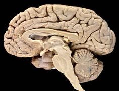 The human brain has three major structural components: the large dome-shaped cerebrum (top), the smaller somewhat spherical cerebellum (lower right), and the brainstem (center)