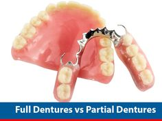 #Full_Dentures vs #Partial_Dentures @ Webdentist.in  #Dentures are prosthesis made to replace missing teeth. Depending on the number of teeth missing your dentist will advise you either a full denture or a Partial denture. There are two types of dentures available - partial and full dentures. Learn the difference between partial & complete dentures, their benefits and suitability, which will help you participate in your treatment plan.