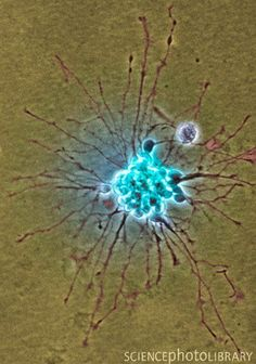 Coloured light micrograph of a 1-week old, nerve cell (neuron) cluster. This cell cluster has been grown in culture. The nerve cell bodies are still grouped together (centre) and the neurites (either axons or dendrites) that will connect the cell bodies to form a network, are beginning to develop (dark lines).