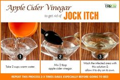 apple cider vinegar to get rid of jock itch