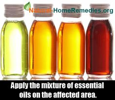 Natural Home Remedies Buzz - http://www.bonanza.com/listings/Zovirax-2g-tube-cold-sores-antiviral-cream-acyclovir-5-herpes-treatment/280218381?st_id=26824595