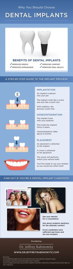 If you're interested in dental implants but you're worried about anxiety, talk to your dentist about sedation dentistry! Look through this infographic to learn about dental implants.