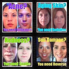 Rodan + Fields gives you the best skin of your life and the confidence that comes with it. Created by Stanford-trained Dermatologists, we understand skin. Our easy-to-use Regimens take the guesswork out of skincare so you can see transformative results. My Rodan And Fields, Might Have, Skin Care Regimen, Good Skin, Helping People, Investing, Health, Skincare, Posts