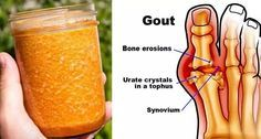 Cure Gout Forever By Using This Natural Treatment