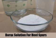 Soaking the heel in Borax solution can prevent pain and reduce swelling. Take 1/2 tsp. of Borax and mix with 1 liter of cold water. The heel has to be soaked for 1/2 an hour before bedtime every day in this solution. Within a few days, the pain will be considerably reduced, and in a few weeks you will be completely healed!