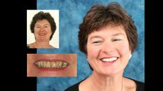 Smile makeover with porcelain crowns and porcelain veneers. Cosmetic dentistry by Dr. Mike Maroon of Advanced Dental in Berlin, CT.