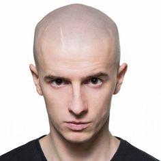 mikropigmentacja skóry głowy zaawansowana metoda w walce z łysieniem